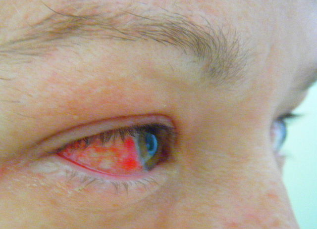adult pink eye contagious period